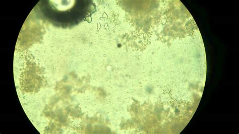 Milk to Curd by Lactobacillus Bacteria Microscopic View
